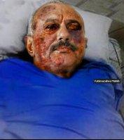 صوره يتم تداولها في الانترنت على انها للرئيس اليمني بعد الحادث